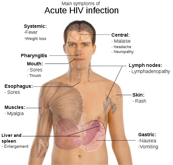 Aids Hiv Symptoms Men